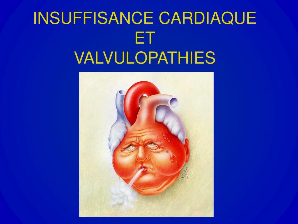 insuffisance cardiaque et valvulopathies l.