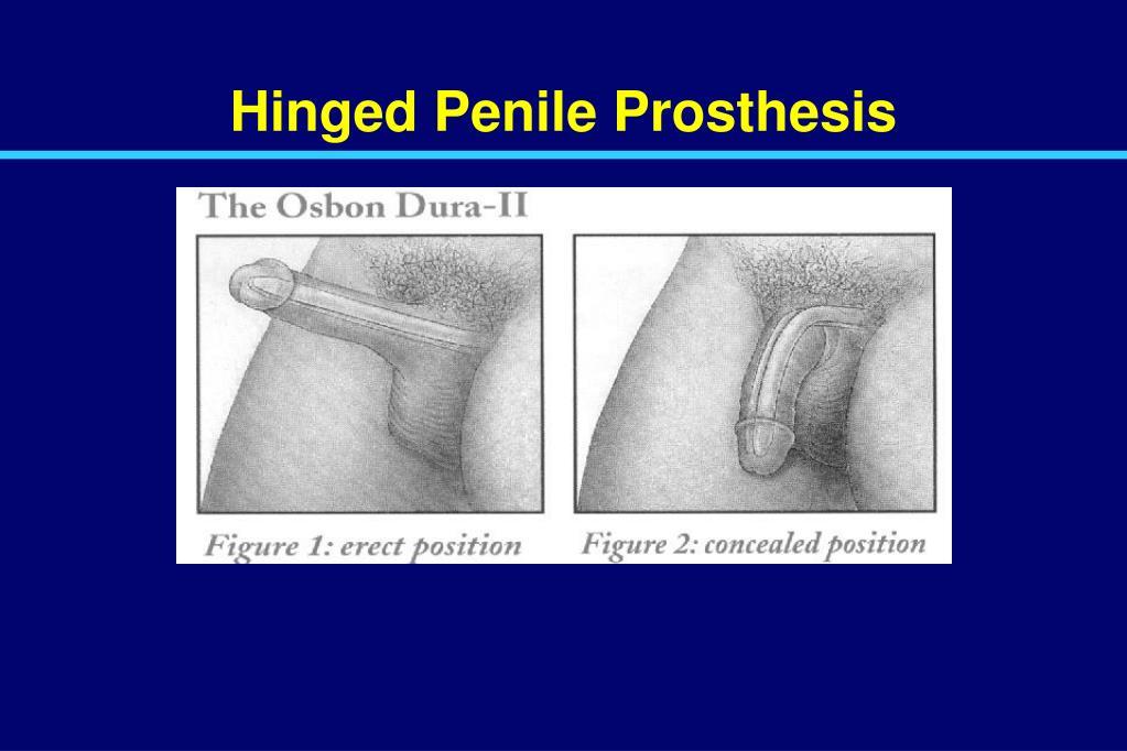 Hinged Penile Prosthesis