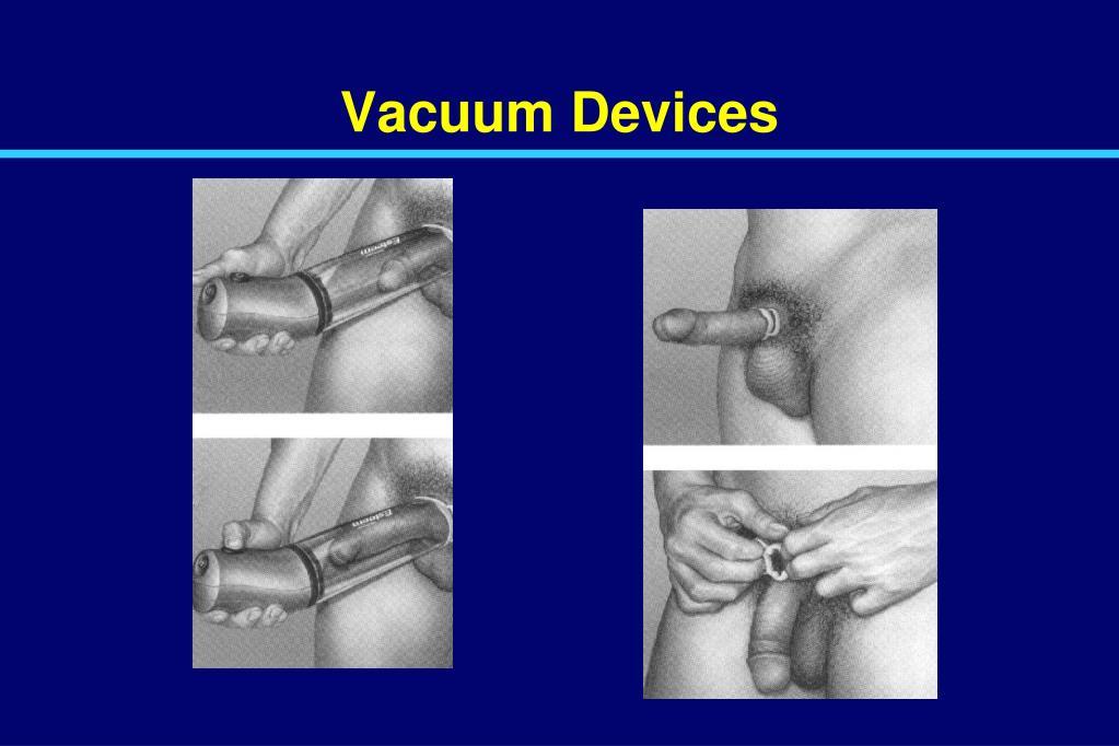 Vacuum Devices