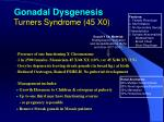 gonadal dysgenesis turners syndrome 45 x0
