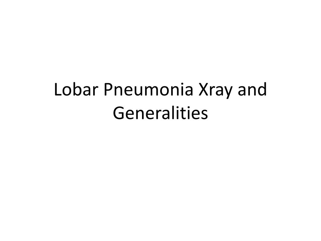 lobar pneumonia xray and generalities l.