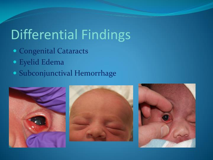 Differential Findings
