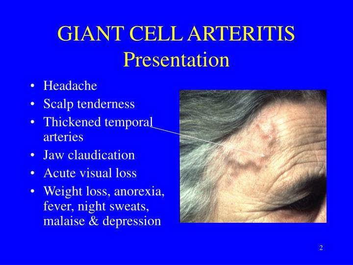 Giant cell arteritis presentation