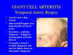 giant cell arteritis temporal artery biopsy