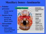 maxillary bones landmarks1