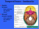temporal bones landmarks