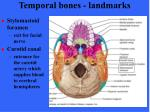 temporal bones landmarks1