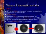 cases of traumatic aniridia