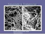 sinusoids trabeculae