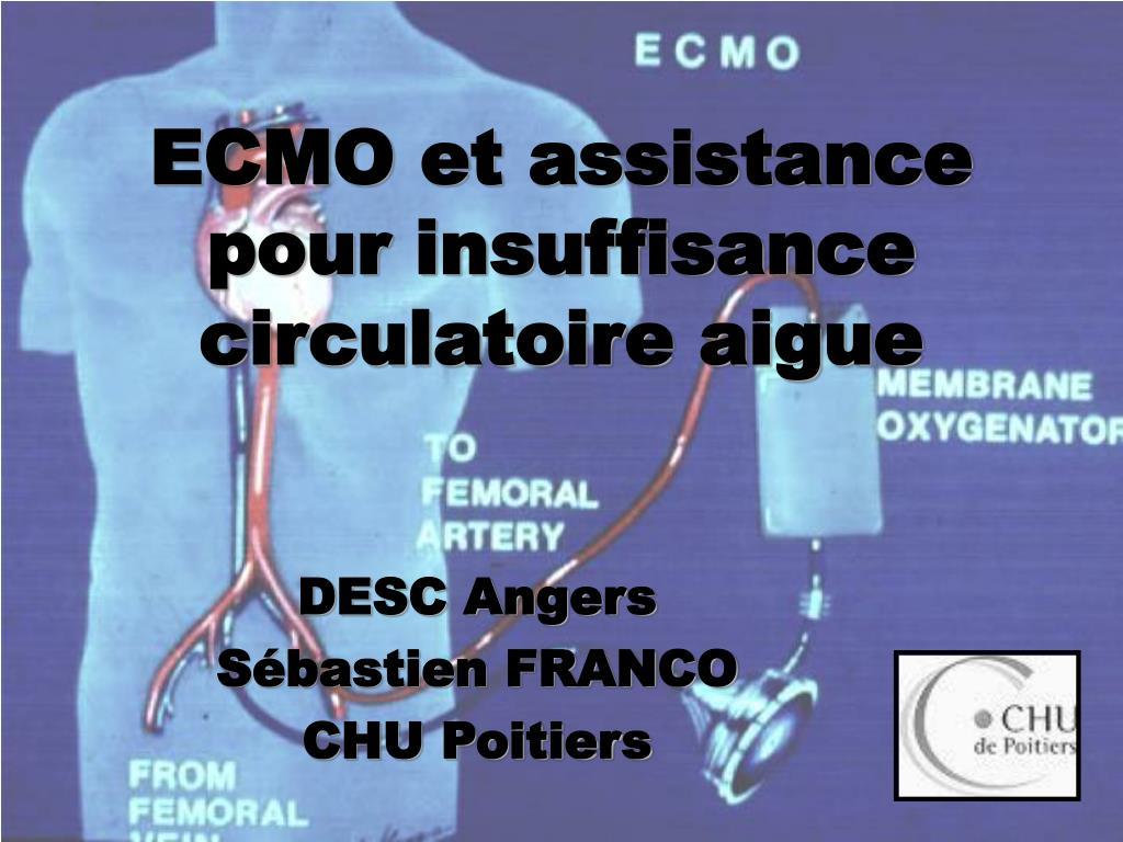 ecmo et assistance pour insuffisance circulatoire aigue l.