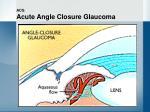 acg acute angle closure glaucoma17