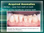 acquired anomalies