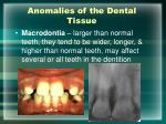 anomalies of the dental tissue