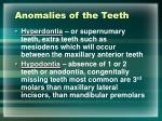 anomalies of the teeth