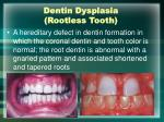 dentin dysplasia rootless tooth