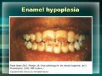 enamel hypoplasia26