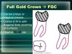 full gold crown fgc