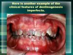 here is another example of the clinical features of dentinogenesis imperfecta