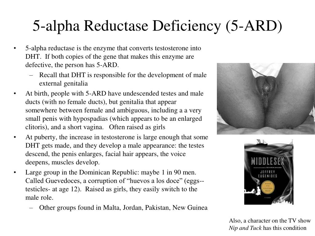 5-alpha Reductase Deficiency (5-ARD)