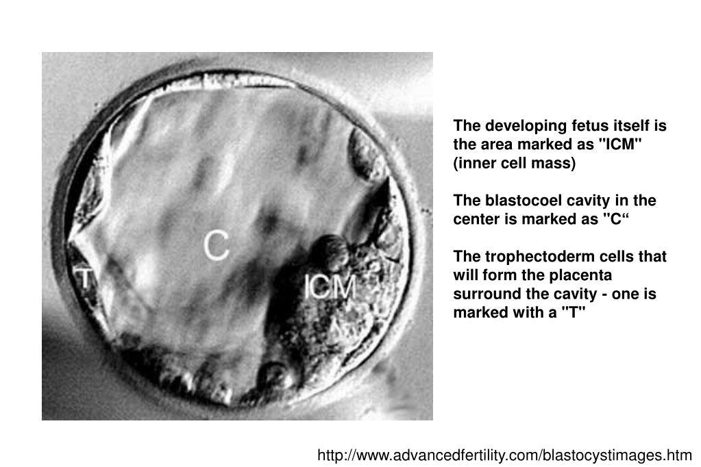 """The developing fetus itself is the area marked as """"ICM"""" (inner cell mass)"""