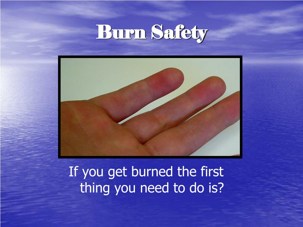 Burn Safety