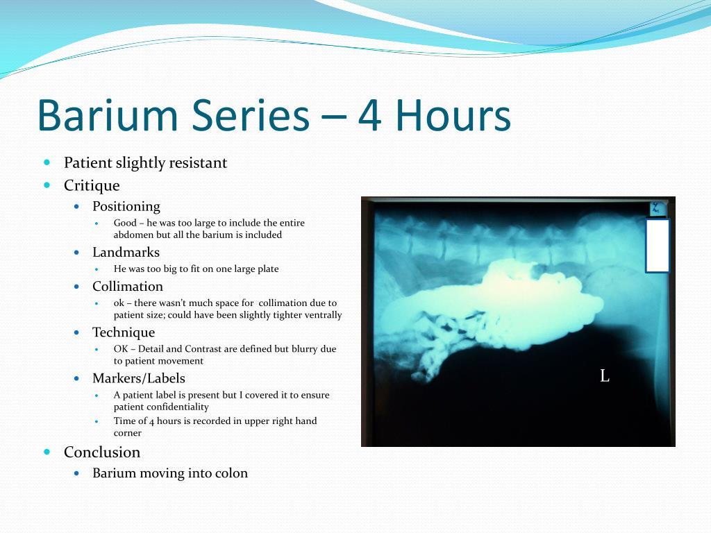 Barium Series – 4 Hours