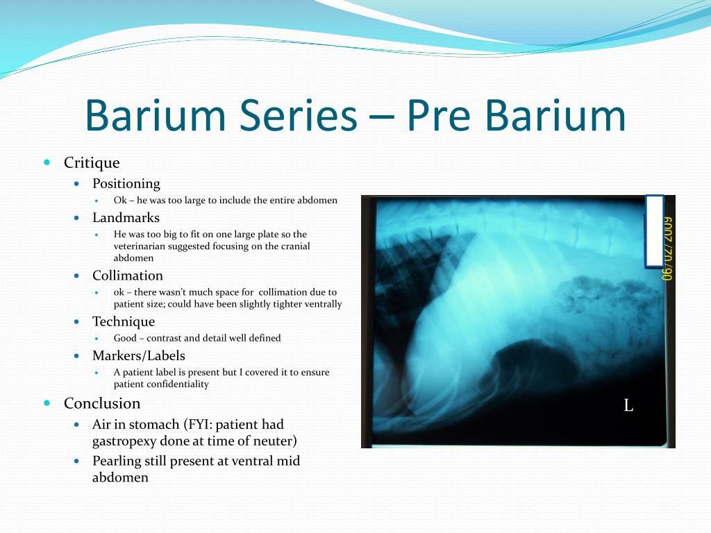 Barium Series – Pre Barium