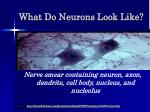 what do neurons look like