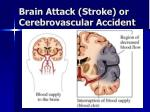 brain attack stroke or cerebrovascular accident