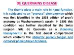 d e quervains disease