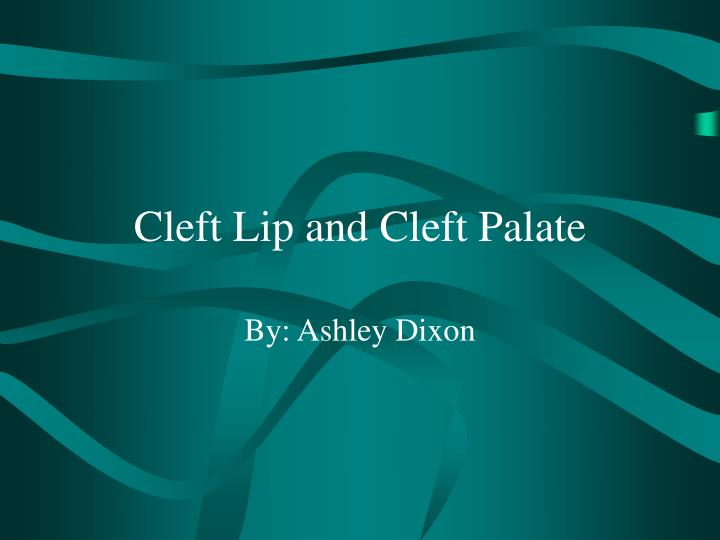 cleft lip and cleft palate n.