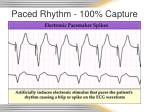 paced rhythm 100 capture