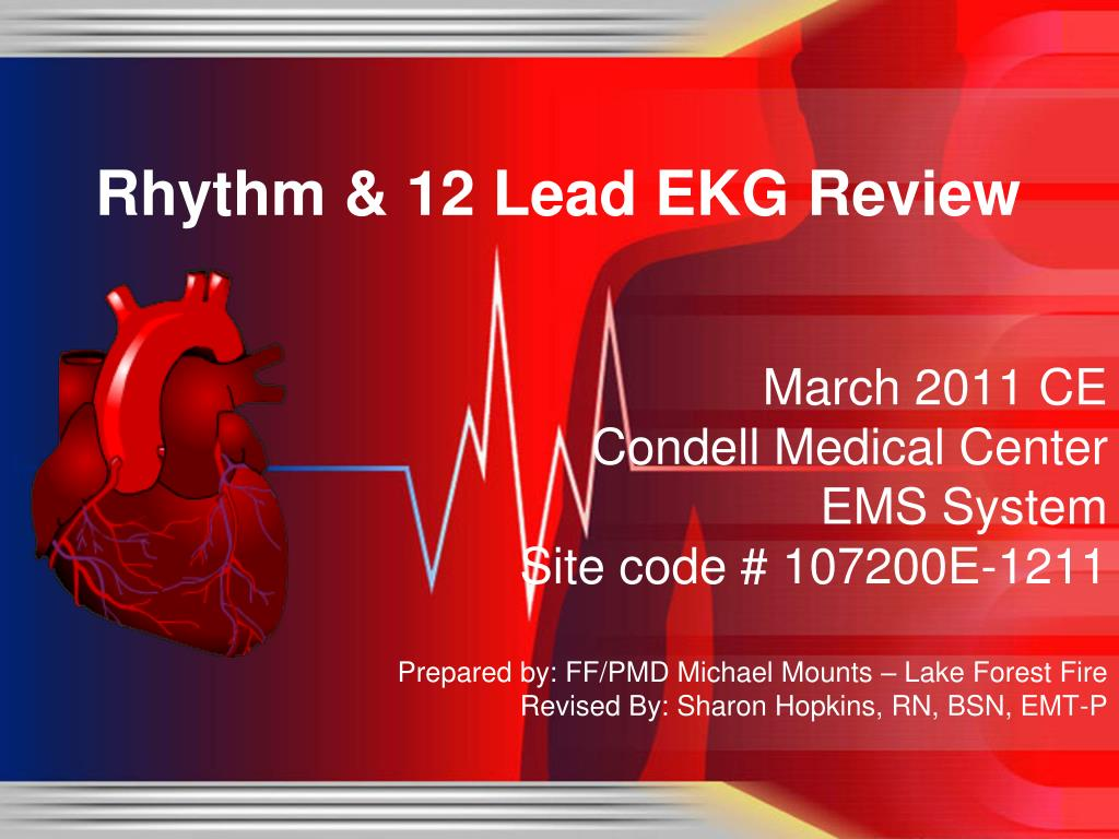 rhythm 12 lead ekg review l.
