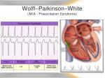 wolff parkinson white aka preexcitation syndrome