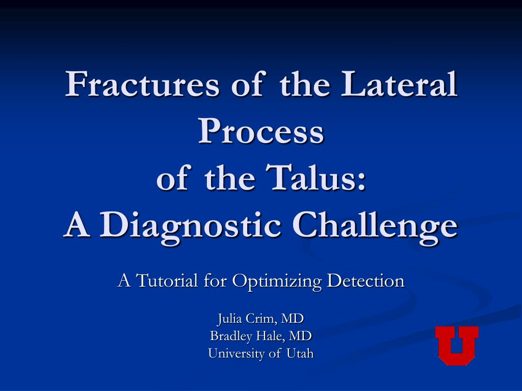 fractures of the lateral process of the talus a diagnostic challenge l.