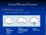 lateral process fracture