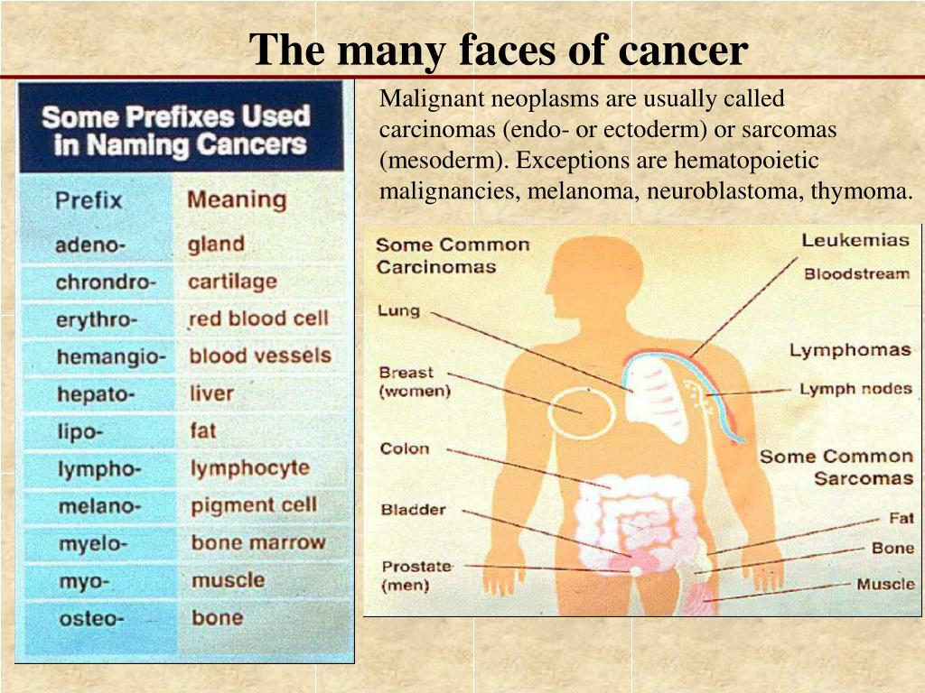 The many faces of cancer