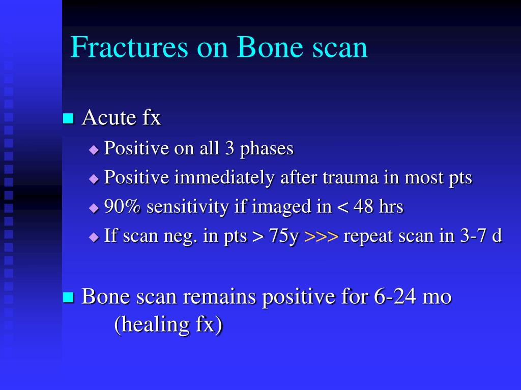 Fractures on Bone scan