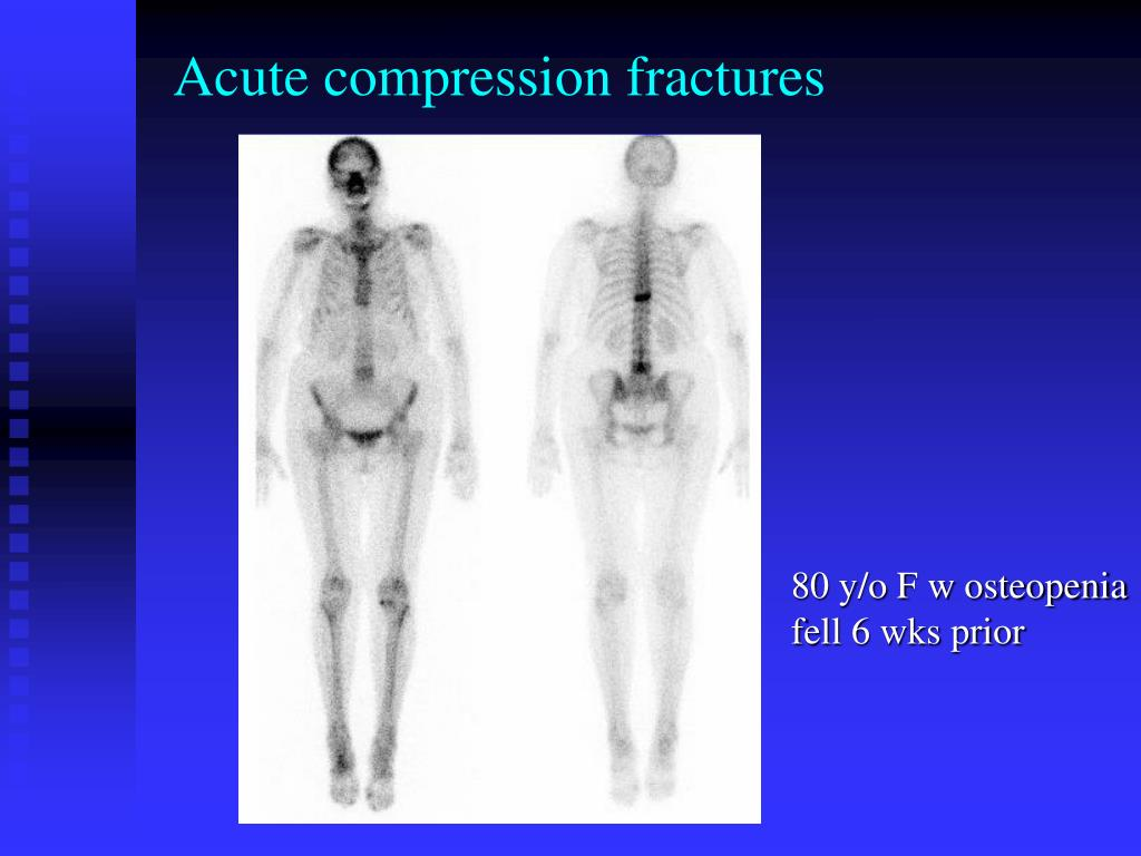 Acute compression fractures