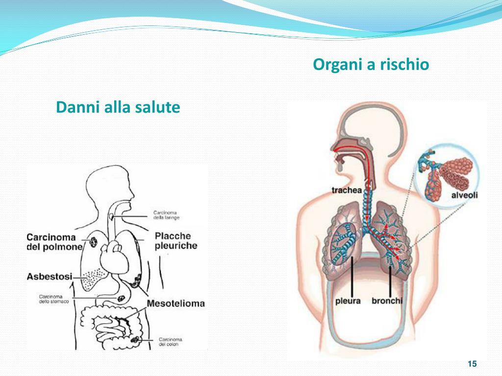 Organi a rischio