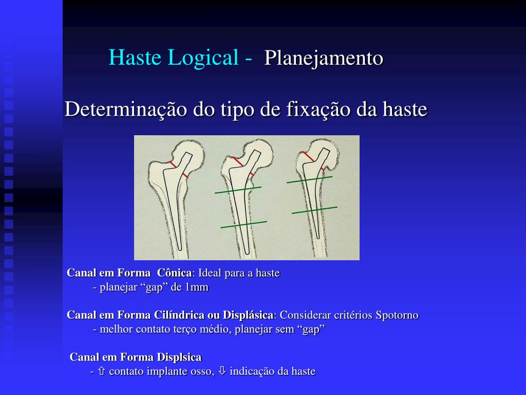 Haste Logical -