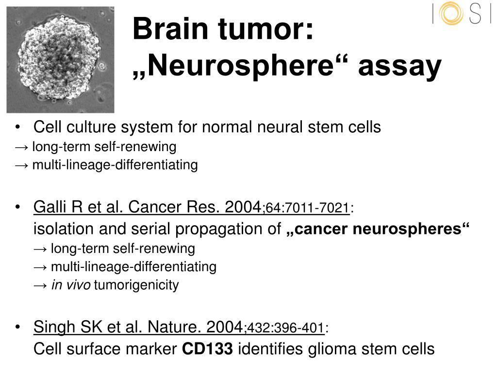 Brain tumor: