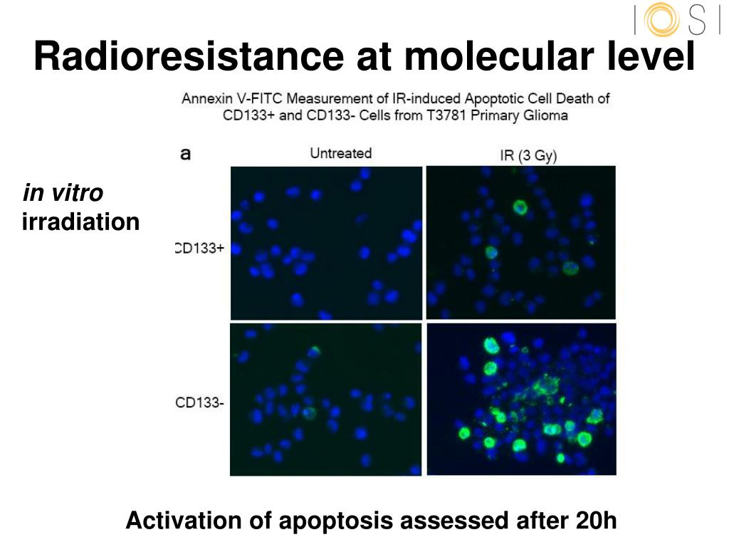 Radioresistance at molecular level