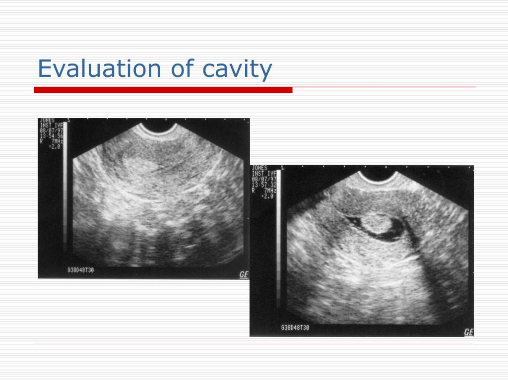 Evaluation of cavity