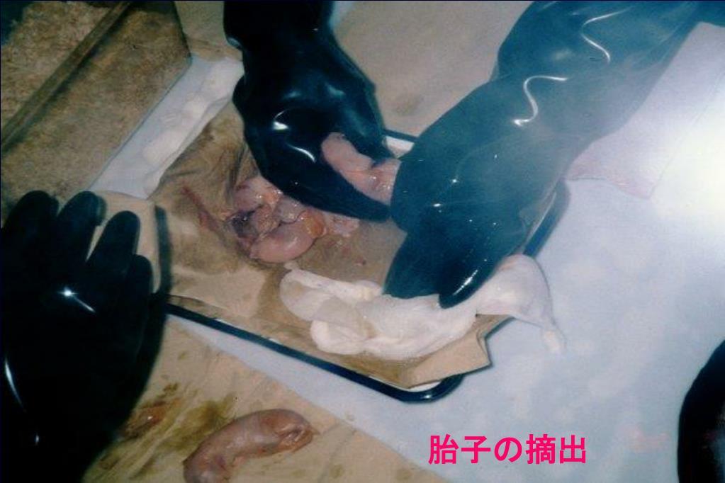 胎子の摘出