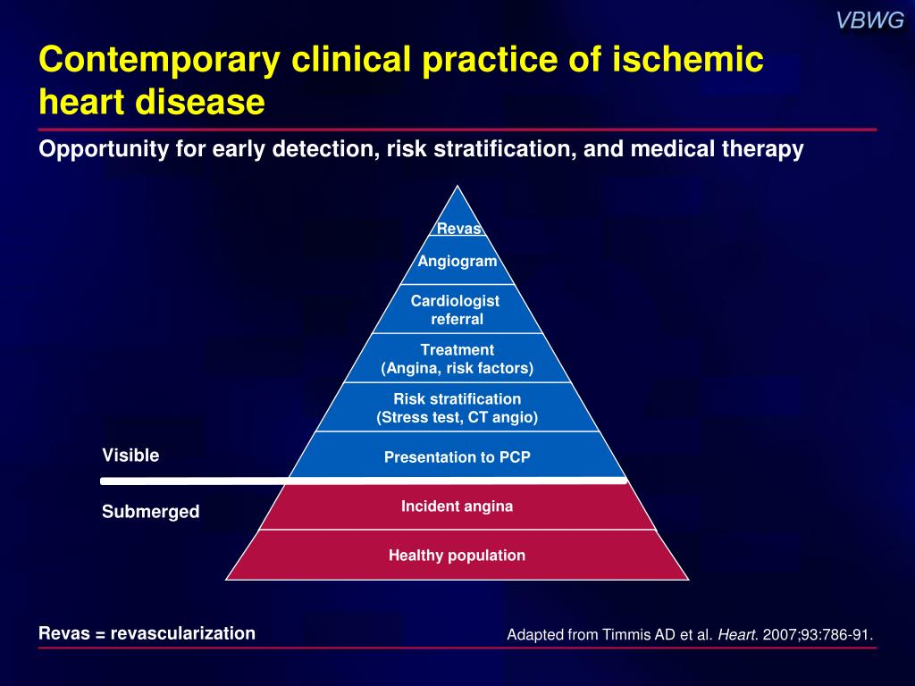 Contemporary clinical practice of ischemic