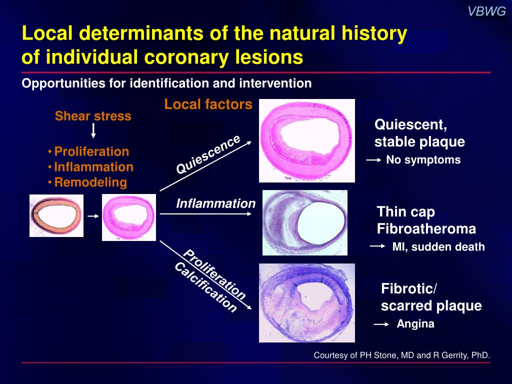 Local determinants of the natural history
