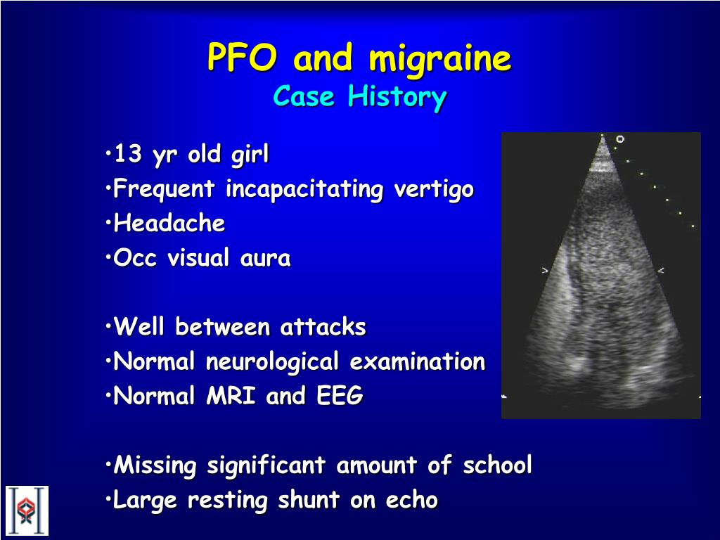 PFO and migraine