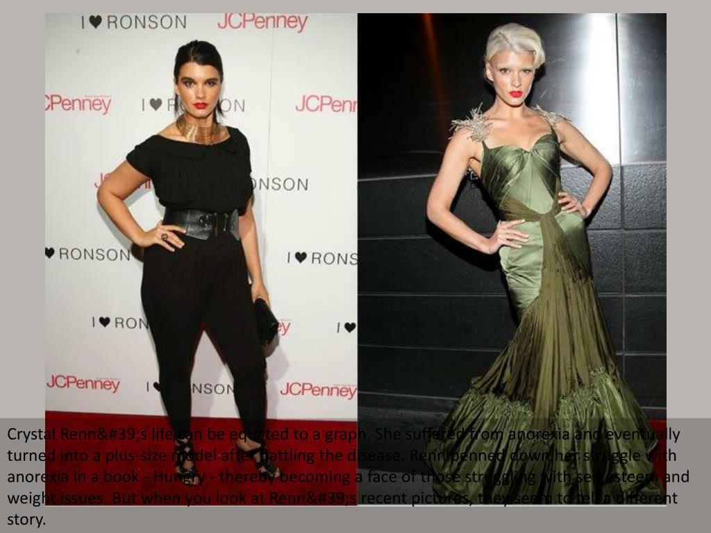 Crystal Renn's life can be equated to a graph. She suffered from anorexia and eventually turned into a plus-size model after battling the disease. Renn penned down her struggle with anorexia in a book - Hungry - thereby becoming a face of those struggling with self esteem and weight issues. But when you look at Renn's recent pictures, they seem to tell a different story.