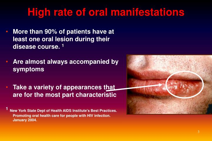 High rate of oral manifestations